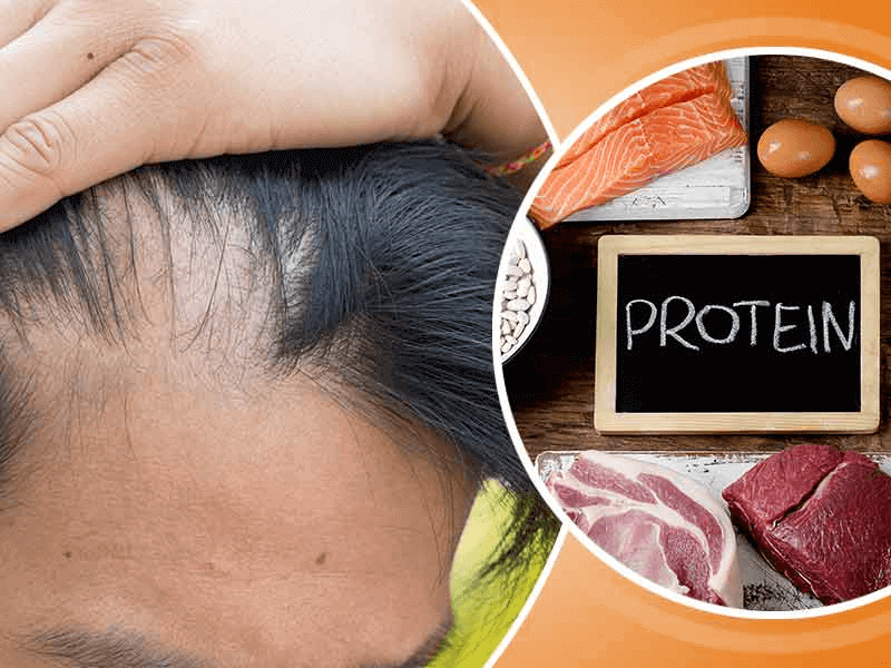 Lack of Protein and Hair Loss