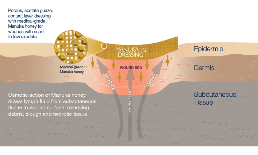Manuka honey for burns and wounds