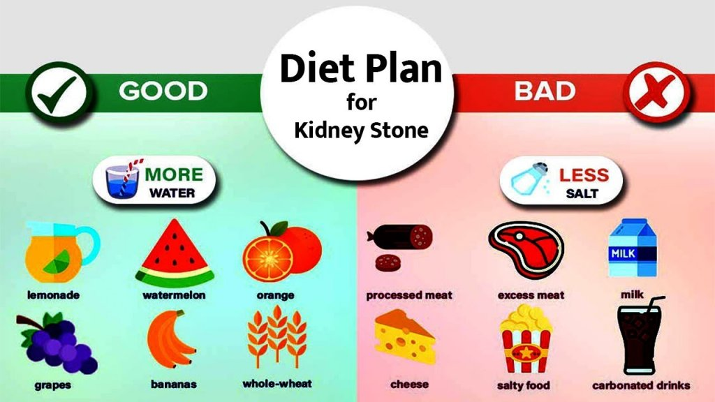 Diet Plan for Kidney Stone Patients